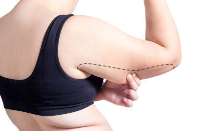lifting braccia chirurgia estetica