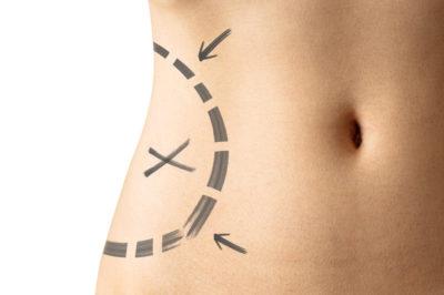 liposcultura chirurgia rimodellamento corpo
